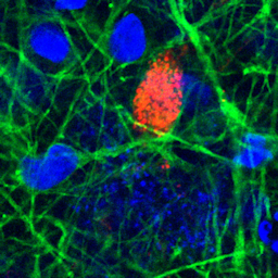 Infectability of human BrainSphere neurons suggests neurotropism of SARS-CoV-2